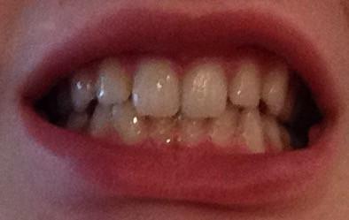 03 - (Zähne, Zahnspange)