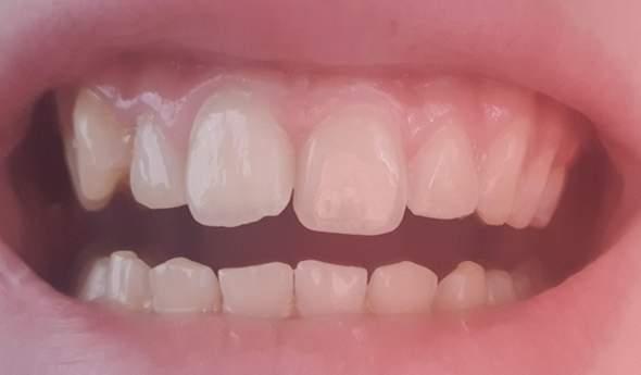 Denkt ihr ich brauche wieder eine Zahnspange?