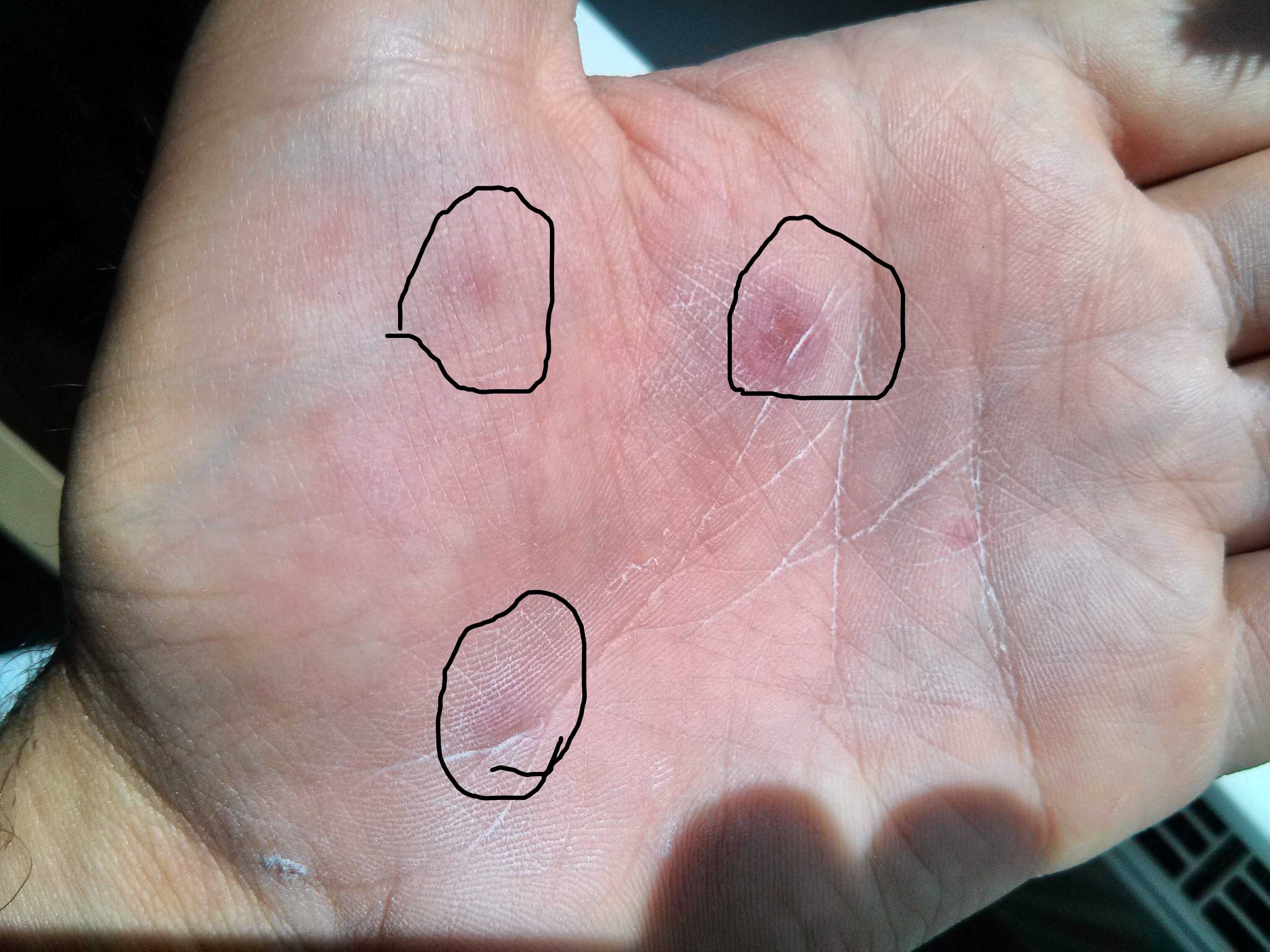 diagnose allergie hand (haut)