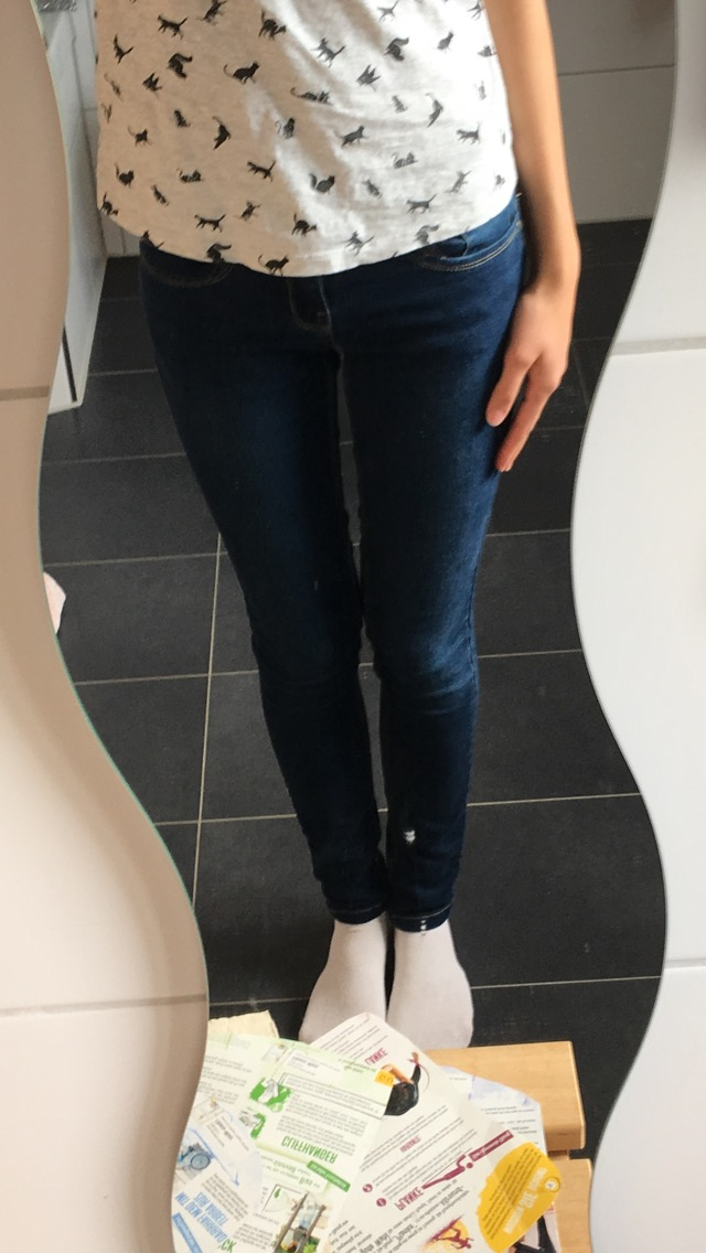 Dicke Beine trotz Normalgewicht? Wie bekomme ich so dünne