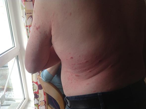 Rücken - (Medizin, Flöhe)