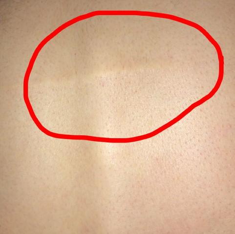 Bild von mein Rücken eher oberhalb  - (Gesundheit und Medizin, Gesundheit, Arzt)
