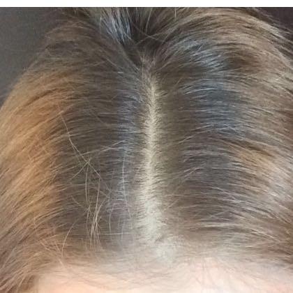 Mein Ansatz - (Haare, Friseur, färben)