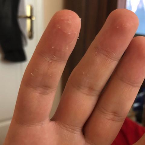 Haut schält sich fingerspitzen Die Haut