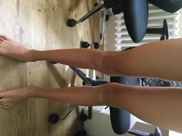 X beine (bin junge) - (Gesundheit und Medizin, Beine, x-beine)