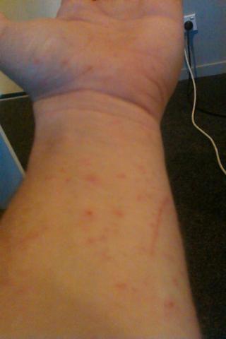 meine hand voller dornen - (Haut, Gefahr, Dornen)
