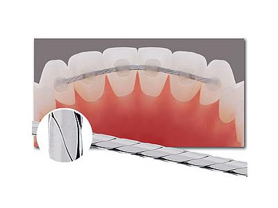 Draht hinter den Zähnen? (Zahnspange, Kiefer, Korrektur)