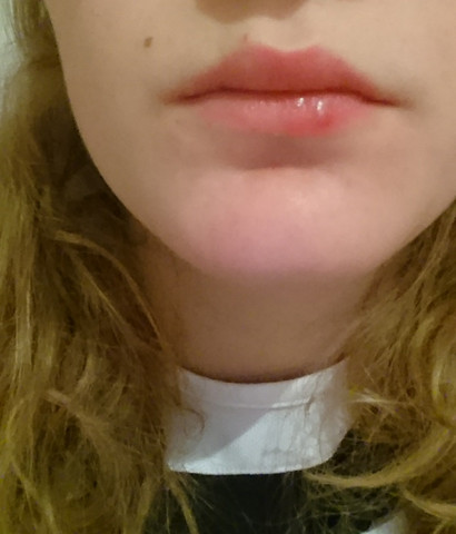 Bild - (Lippe, Herpes, Lippenherpes)