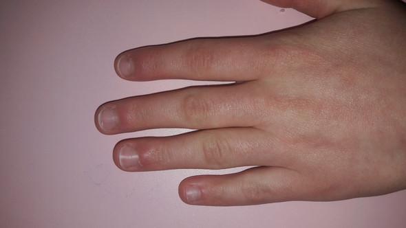 - (Kosmetik, Hand, Nägel)