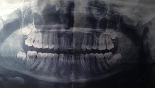 Röntgenbild - (Zähne, Zahnarzt, Zahnspange)