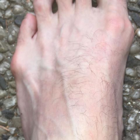 Linker Fuß  - (Gesundheit, Gesundheit und Medizin, Sport und Fitness)