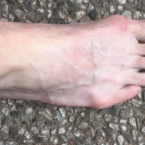 Rechter Fuß  - (Gesundheit, Gesundheit und Medizin, Sport und Fitness)