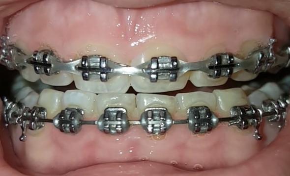 - (Zähne, Zahnspange)