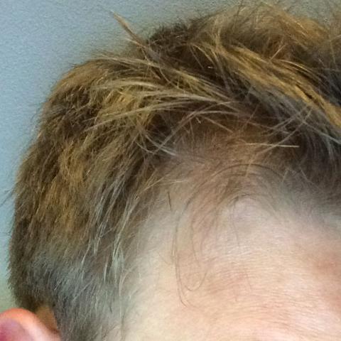 dünnere haare aber kein haarausfall haarpflege kopfhaut