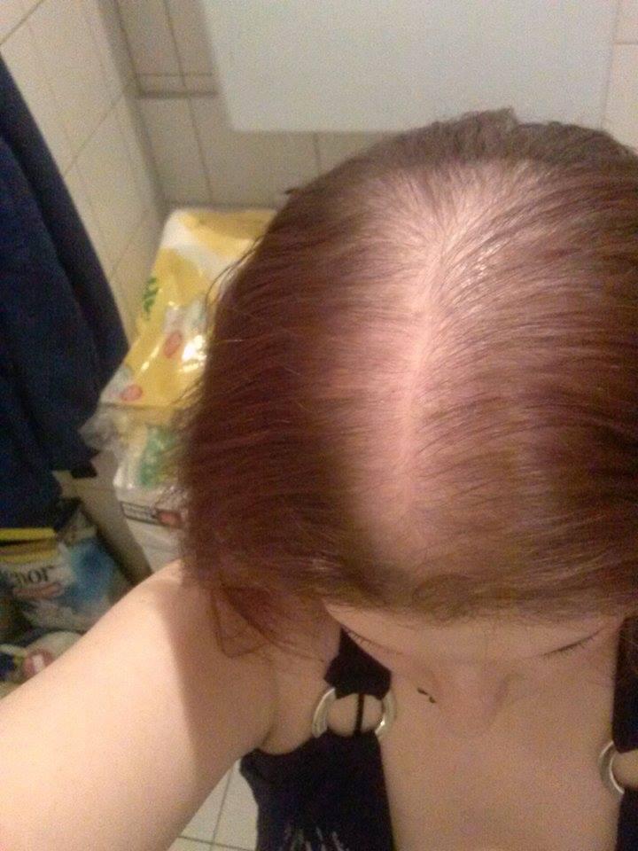 Dünnes Haar Warum Woran Kann Es Liegen Haarprobleme