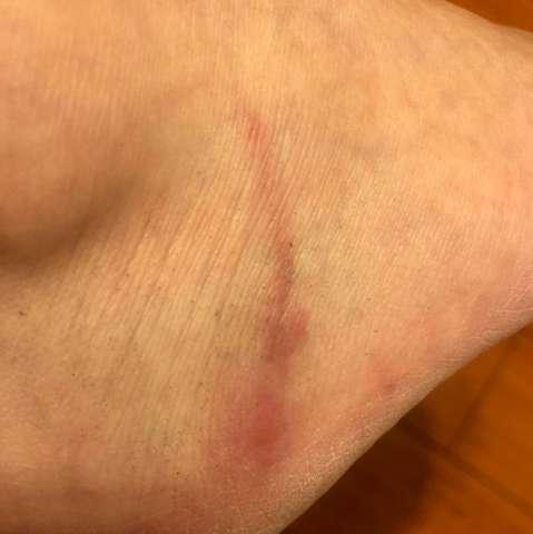 Verlaufende Mückenstich  - (Gesundheit und Medizin, Urlaub, angeschwollen)