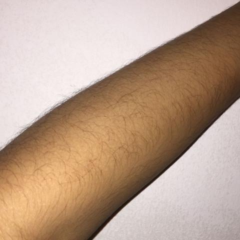 Dunkle und viele Armhaare rasieren?