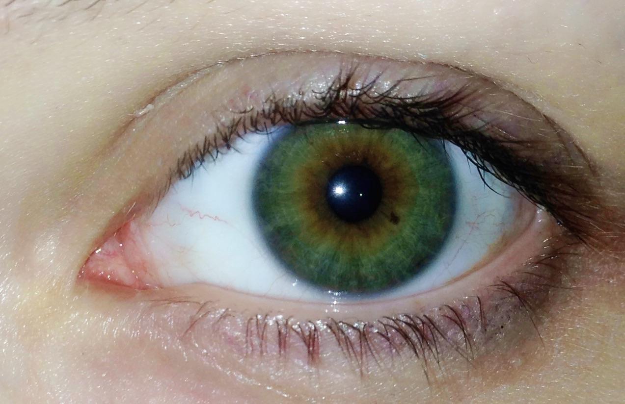 Punkte Im Auge Bedeutung