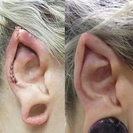 Beispiel  - (Piercing, Cosplay, Larp)
