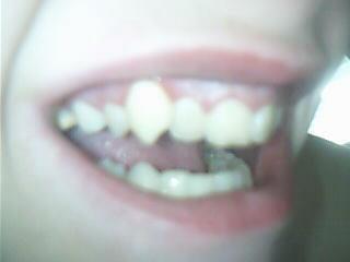 Mein Vampirzahn Rechts oben. - (Zahnarzt, Implantieren, Vampirzahn)