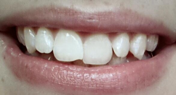 Meine Zähne bild - (Zähne, schief)