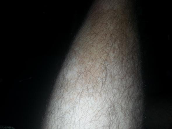 Die braunen Pigmentflecke auf den Beinen