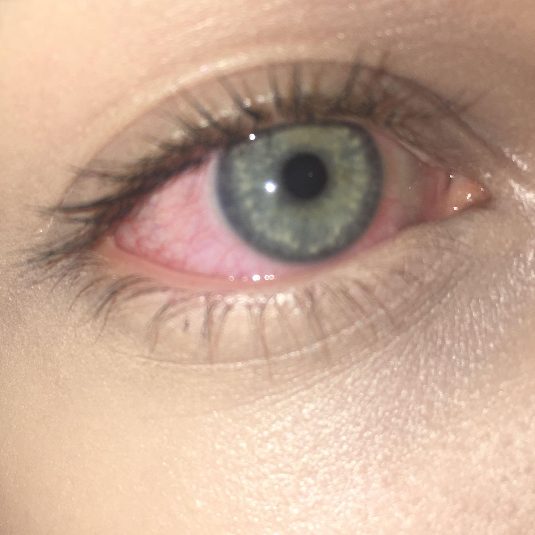 Ein sehr rotes Auge nach kiffen? (Gesundheit und Medizin