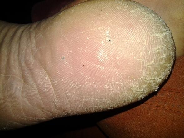 Splitter Im Fuß Entzündung