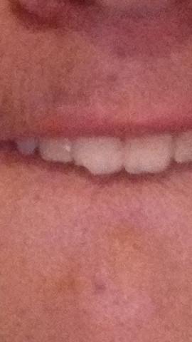 Zahn Scharfe Kante Zunge