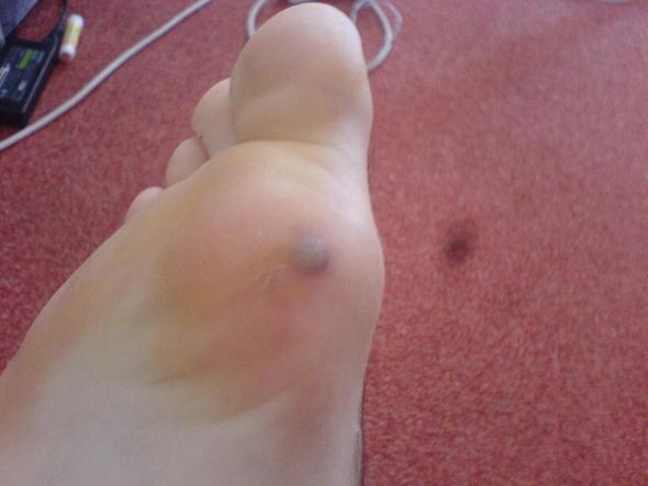 rechtes bein  - (Füße, Blase)