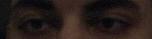 Ist das schlimm, wenn eine Pupille größer ist, als die