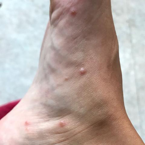 Mückenstichartiger Ausschlag
