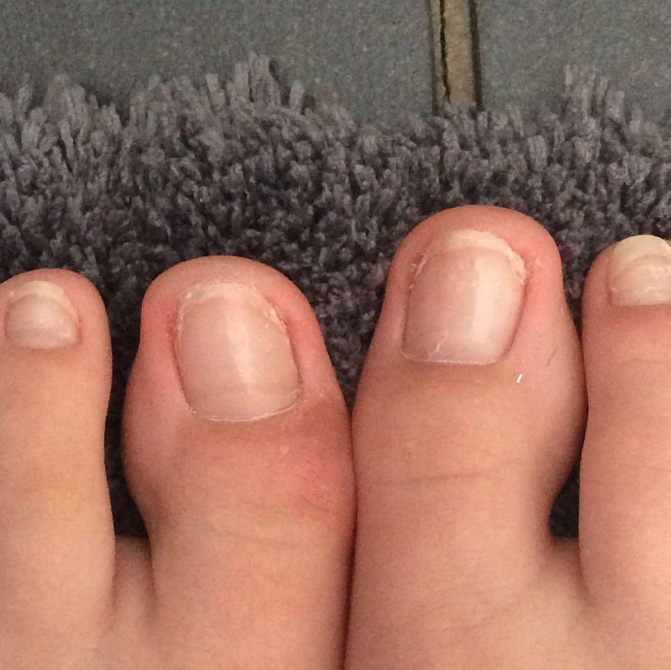 Eingewachsene Große Zehennägel was tun? (Arzt, Füße, Nägel)