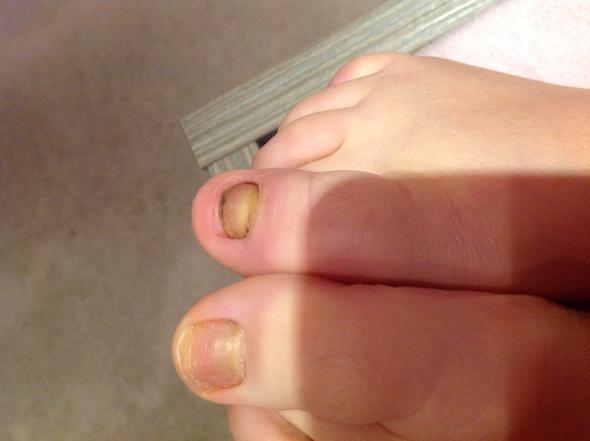 Nach der Pediküre gribok der Nägel auf den Beinen