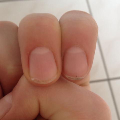 Meine Nägel  - (kaputt, Nägel, Fingernägel)