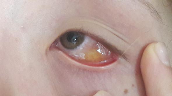 Weiße Fäden Im Auge