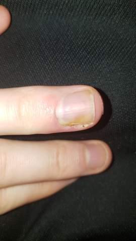 Nagelbett entzündetes Nagelbettentzündung: Ursachen,