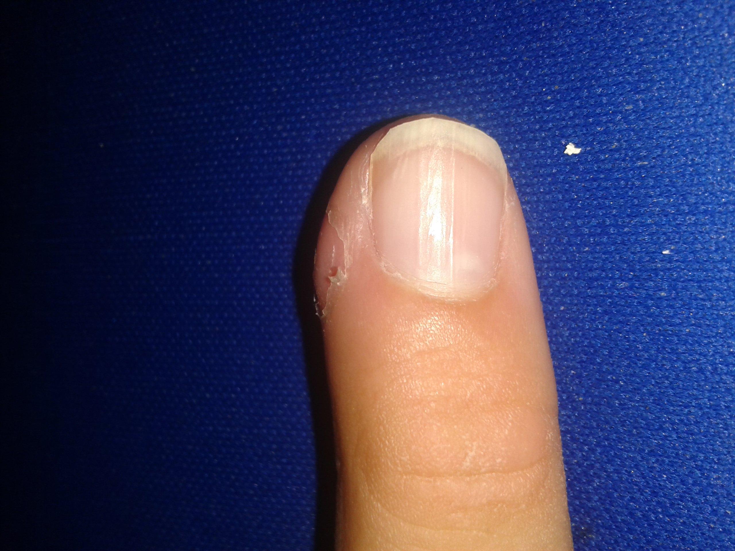 Splitter Im Finger Eiter