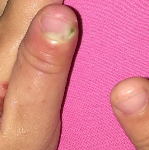 Eiterfinger und Nagel was tun? (Gesundheit und Medizin