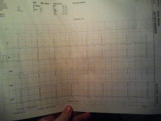 EKG I - (Medizin, Arzt, Herz)