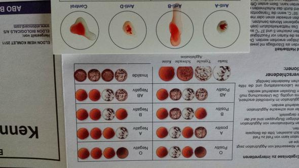 Blutgruppe schnelltest