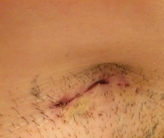 Narbe zieht es nach innen - (Medizin, Operation, Narben)