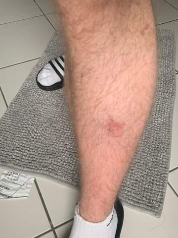 Entzündeter mückenstich (kriebelmücke) Rötung großflächig?