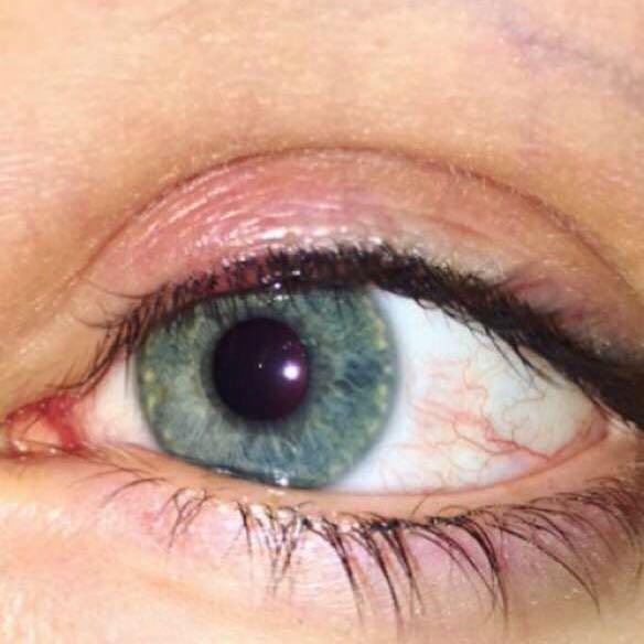 Entzündung am Auge oder nicht? (Schmerzen, Augen, Rötung)
