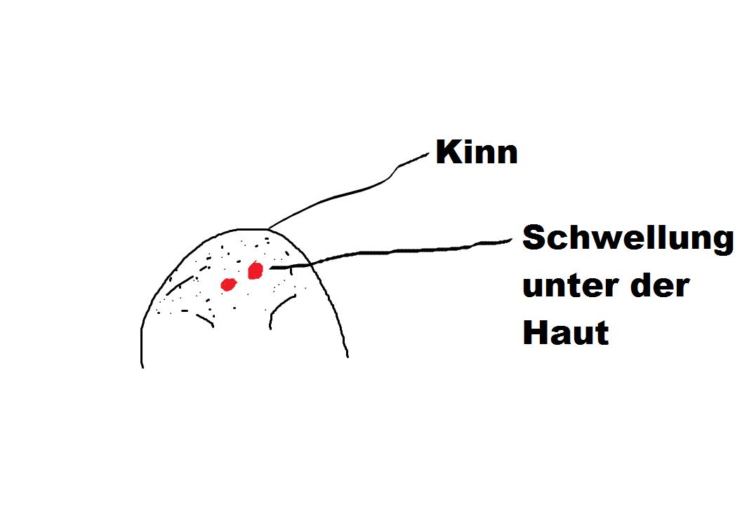Nett Diagramm Der Lymphknoten Fotos - Anatomie und Physiologie des ...