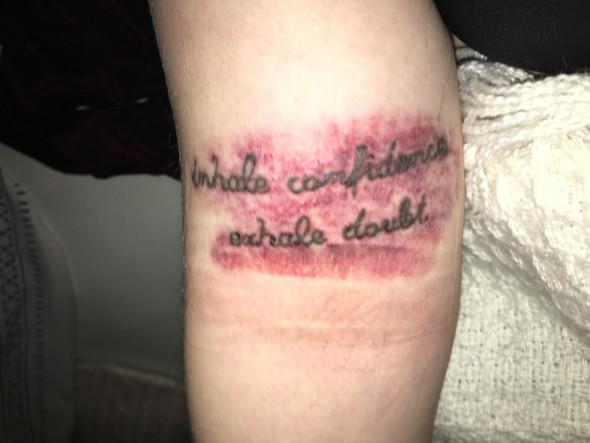 - (Bluterguss, tattooentfernung)