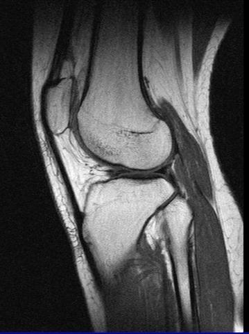 Knie - (Medizin, Arzt, Schmerzen)
