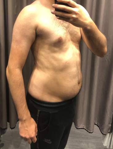 Erst abnehmen oder direkt Muskelaufbau bei so ein Body?