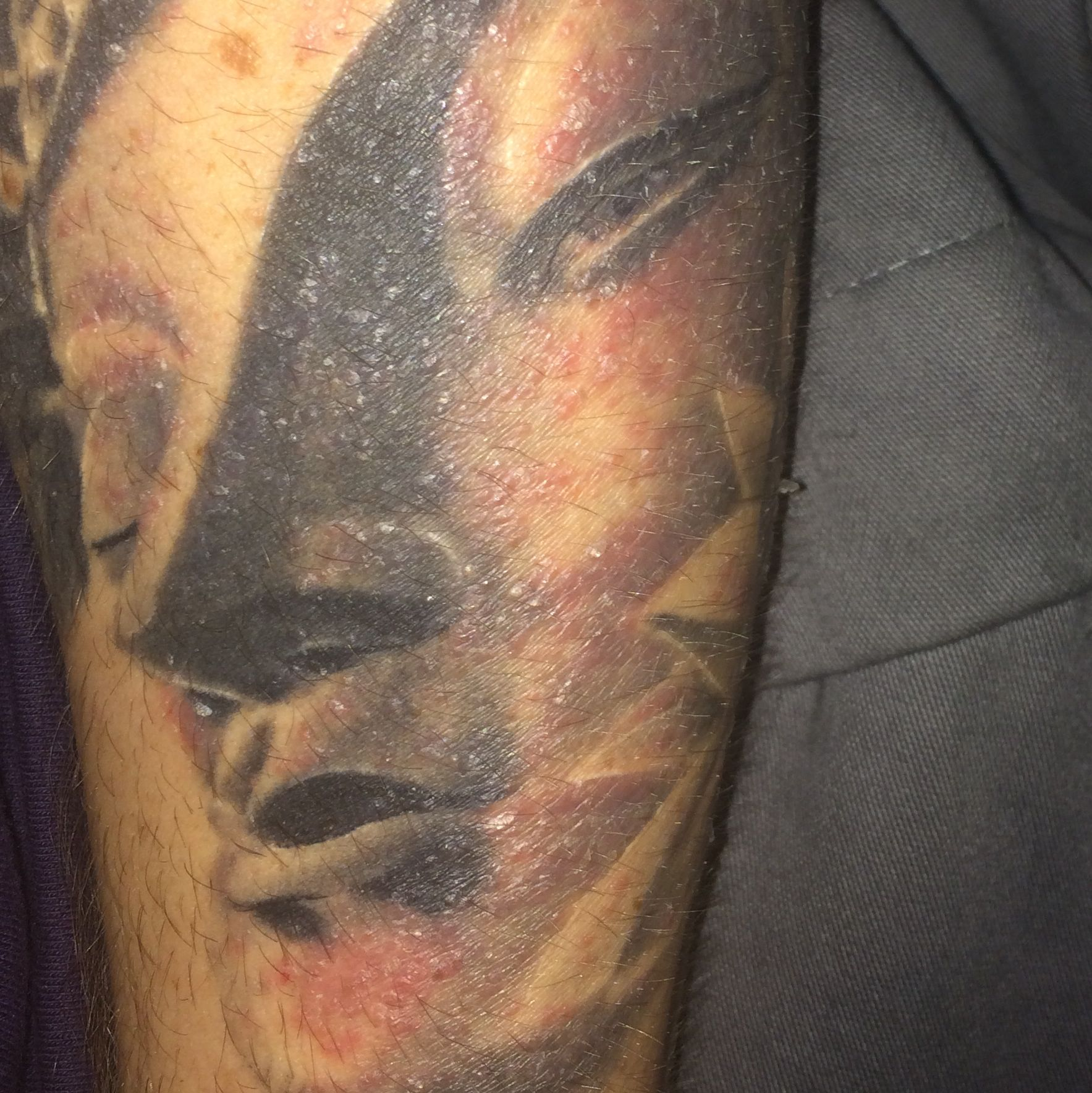 Wie Lange Hält Ein Reetdach es ist eine allergie auf ein spray was der tattoovierer benutzt hat wie lange hält das an