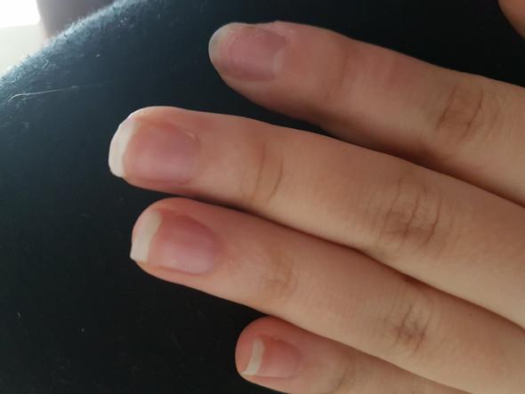 Bild 2 - (Gesundheit, Körper, Finger)